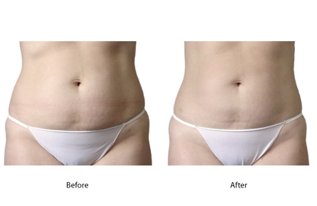 Cellulite Therapy Effective For Tummy