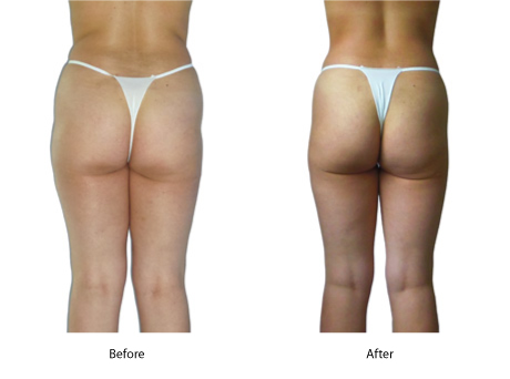 Cellulite Therapy Effective For Butt