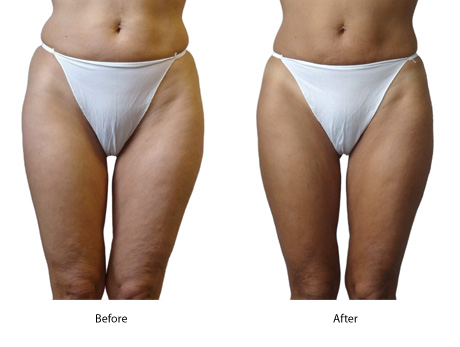 Cellulite Therapy Effective For Tummy Hips